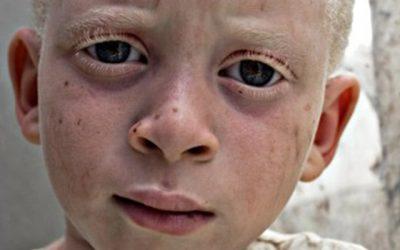"""Exposición: """"Albinismo"""""""